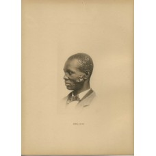 Harroun and Bierstadt. Medical. Keloid. African American Man  Hand Colored Artotype